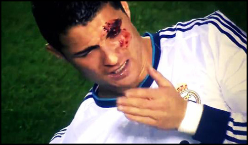 After Being Elbowed In Levante Vs Real Madrid  For La Liga 2012 2013